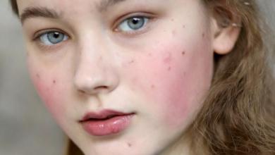 Photo of Yüzdeki kızarıklık: sık görülen nedenler ve tedavileri
