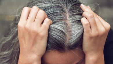 Photo of Saç Beyazlaması Nasıl Önlenir?