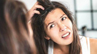 Photo of Saç Diplerinde Kaşıntı Neden Olur, Nasıl Geçer?