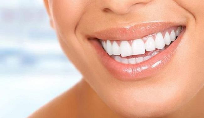 Dişler Nasıl Beyazlatılır?